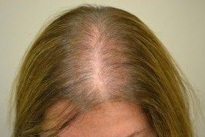 alopécie définition