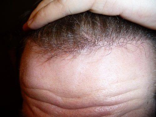 La calvitie frontale se manifeste par la perte des cheveux au niveau du front