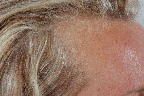 Exemple de la calvitie frontale