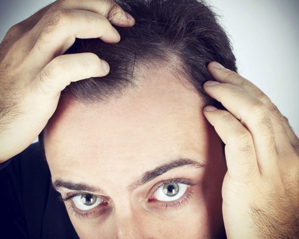 stop traitements pour arr ter la perte de cheveux. Black Bedroom Furniture Sets. Home Design Ideas