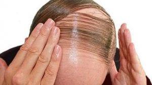 Quelle coiffure pour cacher la calvitie ?