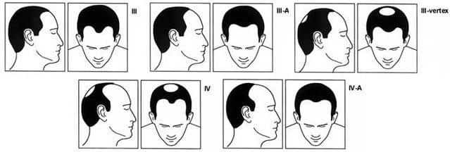 Quels sont les symptômes de l'alopécie ?