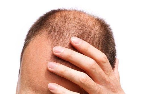 Les causes de la calvitie et de la perte de cheveux for Calvitie quelle coupe de cheveux