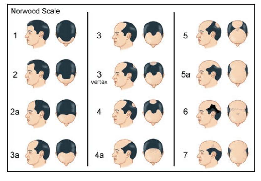 Classification de Hamilton-norwood qui explique l'évolution et la progression de la calvitie et de la perte de cheveux