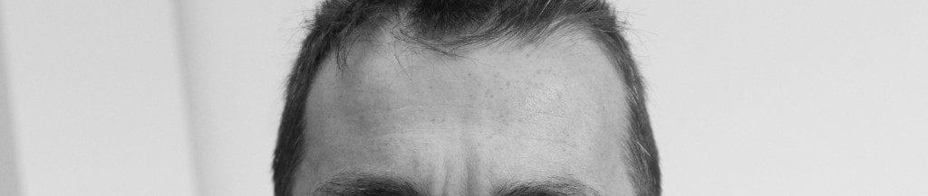 La calvitie frontale est celle qui se manifeste le plus rapidement