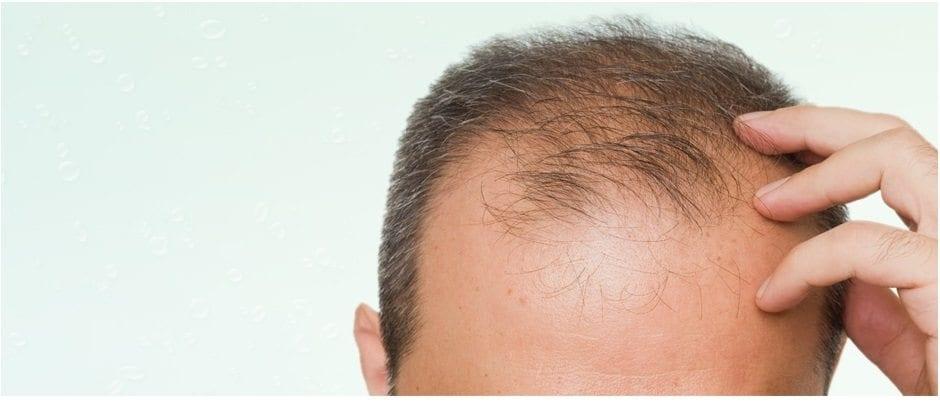 La perte de cheveux peut débuter à l'adolescence, vers 14 ou 15 ans
