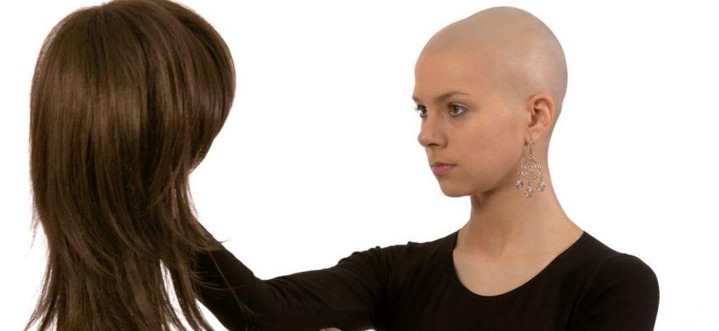 perruque-alopecie