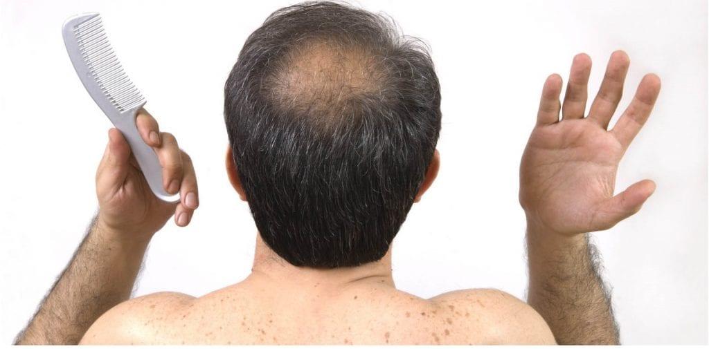 perte-de-cheveux-homme