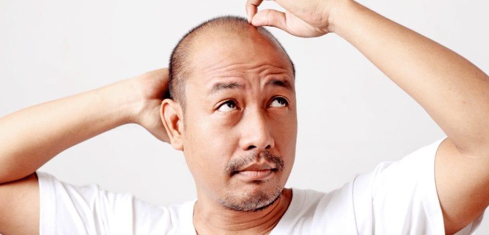 L'effluvium ou l'alopécie diffuse : tout ce que vous devez savoir